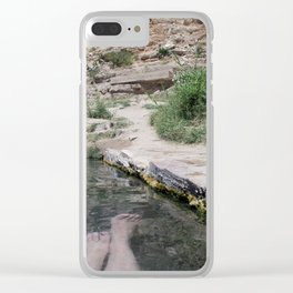 Hot Spring Toes Clear iPhone Case
