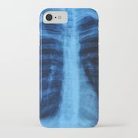 medical iPhone & iPod Cases featuring x ray medical radiography by tony tudor