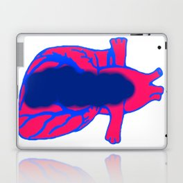 Vacant Heart Laptop & iPad Skin