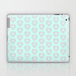 Happy Heart Gems Laptop & iPad Skin