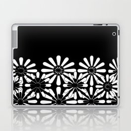 Black and White Floral Pattern Laptop & iPad Skin
