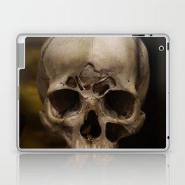 Malformed Human Skull Laptop & iPad Skin