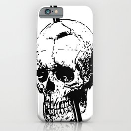 The Skull of Phineas Gage Vintage Illustration iPhone Case