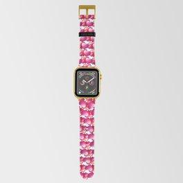 Heart Swirl Apple Watch Band