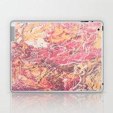 Hillier Laptop & iPad Skin
