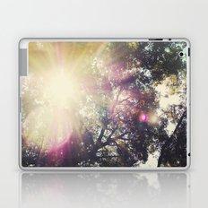 Sun/Sunflare Laptop & iPad Skin