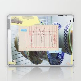 do you think Laptop & iPad Skin