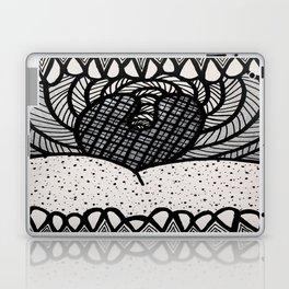Say AHHH Laptop & iPad Skin