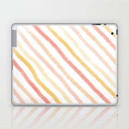 Pattern: Candy Stipes Laptop & iPad Skin