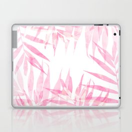 Pink Tropicana Laptop & iPad Skin