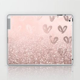 Rose Gold Sparkles on Pretty Blush Pink with Hearts Laptop & iPad Skin