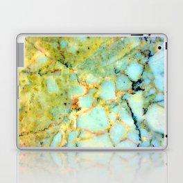 harry le roy (heart of gold) Laptop & iPad Skin