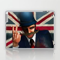 The bollocks Laptop & iPad Skin