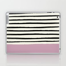 Dusty Rose & Stripes Laptop & iPad Skin