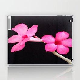 LOVE IS A PAIR Laptop & iPad Skin