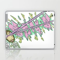 I Can't Stop Laptop & iPad Skin