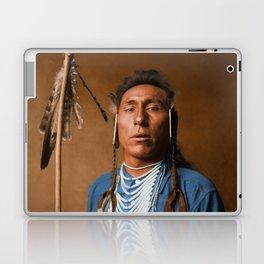 Tries His Knee - Crow American Indian Laptop & iPad Skin
