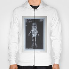 X-Ray of Famous Chillie Willie Hoody