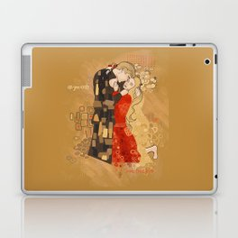 The Invention of the Kiss Laptop & iPad Skin