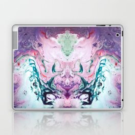 Who Rules in the Space Between Laptop & iPad Skin