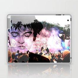 Pete Doherty Laptop & iPad Skin