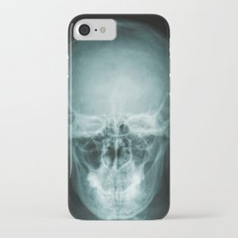 Human x-ray scan iPhone Case