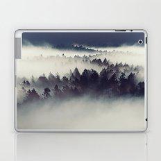 The forgotten Laptop & iPad Skin