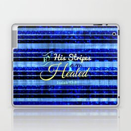 BY HIS STRIPES Colorful Blue Stripes Bible Scripture Fine Art Pattern Typography God Jesus Faith Laptop & iPad Skin