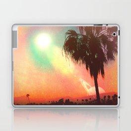 My Déjà Vu Laptop & iPad Skin