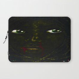 Bruised & Contused Laptop Sleeve