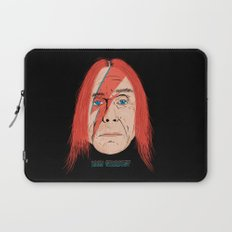 Iggy Stardust Laptop Sleeve