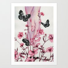It Aches Art Print