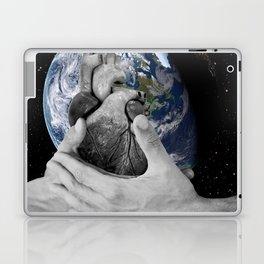 J'ai le mal de toi (I ache for you, I miss you so much it hurts) Laptop & iPad Skin