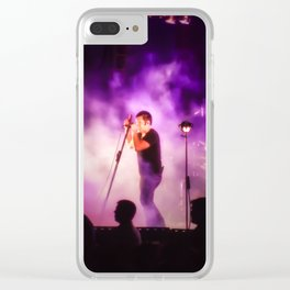 Trent Clear iPhone Case