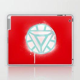TEAM IRON  Laptop & iPad Skin