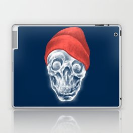 sCOOL! Laptop & iPad Skin