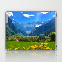 Lake Louise, Beautiful Day Laptop & iPad Skin