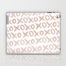 Elegant faux rose gold blush pink love xoxo typography pattern Laptop & iPad Skin