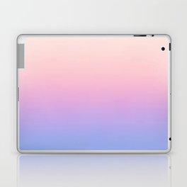 Simple View 1.0 Laptop & iPad Skin