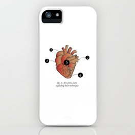 Five Point Palm Exploding Heart Technique iPhone Case