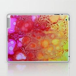 Pink Rain Laptop & iPad Skin