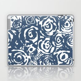 Navy Flower Bundle Laptop & iPad Skin