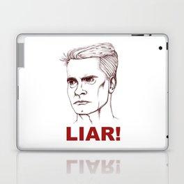 I'm A LIAR! Laptop & iPad Skin