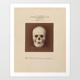 The Vintage War Surgeon Skull - Army Museum Art Print