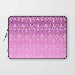 Pink Sugar Skull Laptop Sleeve