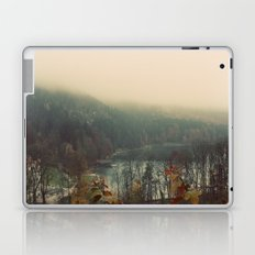 Overlooking the Lake Color Photo Nature Trees Laptop & iPad Skin