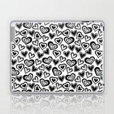 MESSY HEARTS: BLACK Laptop & iPad Skin