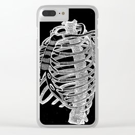 Ribcage Clear iPhone Case