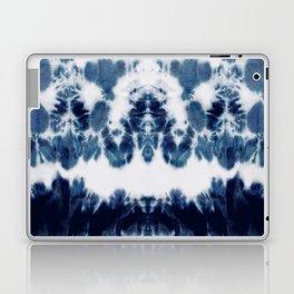 Shibori Not Sorry Laptop & iPad Skin