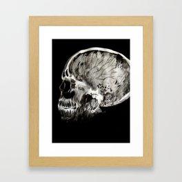 January 11, 2016 (Year of radiology) Framed Art Print